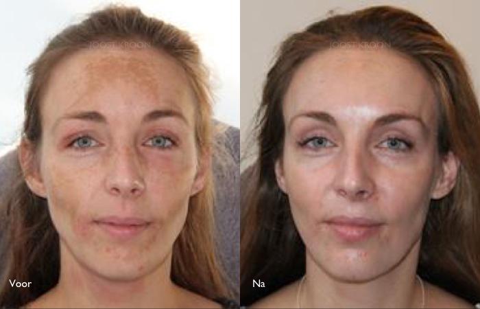 laserbehandeling gezicht prijs